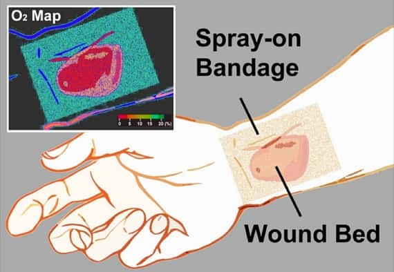 Spray On Smart Bandage