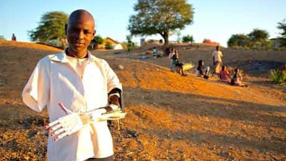 3D Printer Gives Boy New Arm